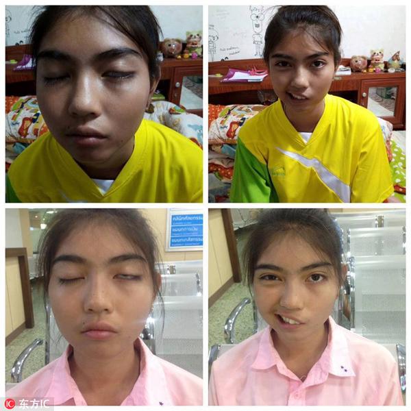 泰少女遭老师扔杯子砸脸致面瘫 手术后重获笑容